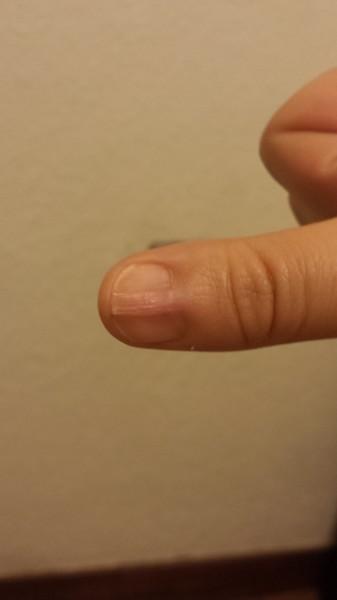 Ногти не срастаются с кожей