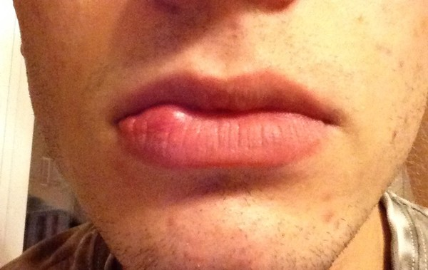 Гемангиома нижней губы что это такое 40