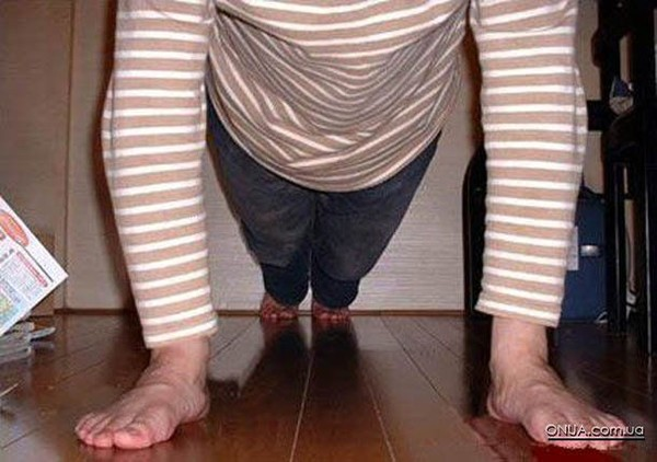 v-zhope-noga-foto