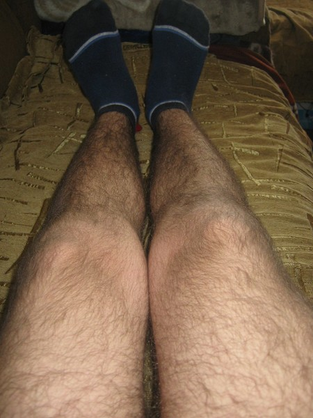 pod-partoy-nogi