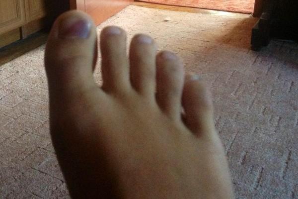 За сколько проходит синяк под ногтем