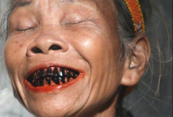 Все зубы в черноте