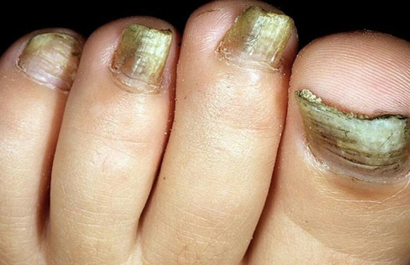 Грибка ногтей на ногах