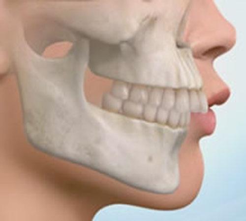 Почему верхняя челюсть выдвинута вперед