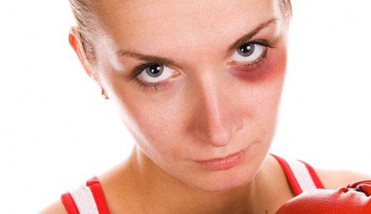 Как убрать синяк от удара в домашних условиях быстро
