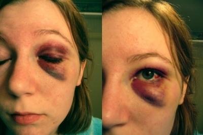 Удаление синяков с глаз в домашних условиях