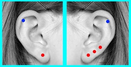 Как сделать себе дырку в ухе