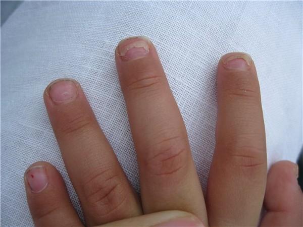 У ребенка отслаиваться ногти у основания