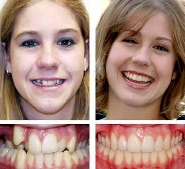 виниры на зубы в аптеке