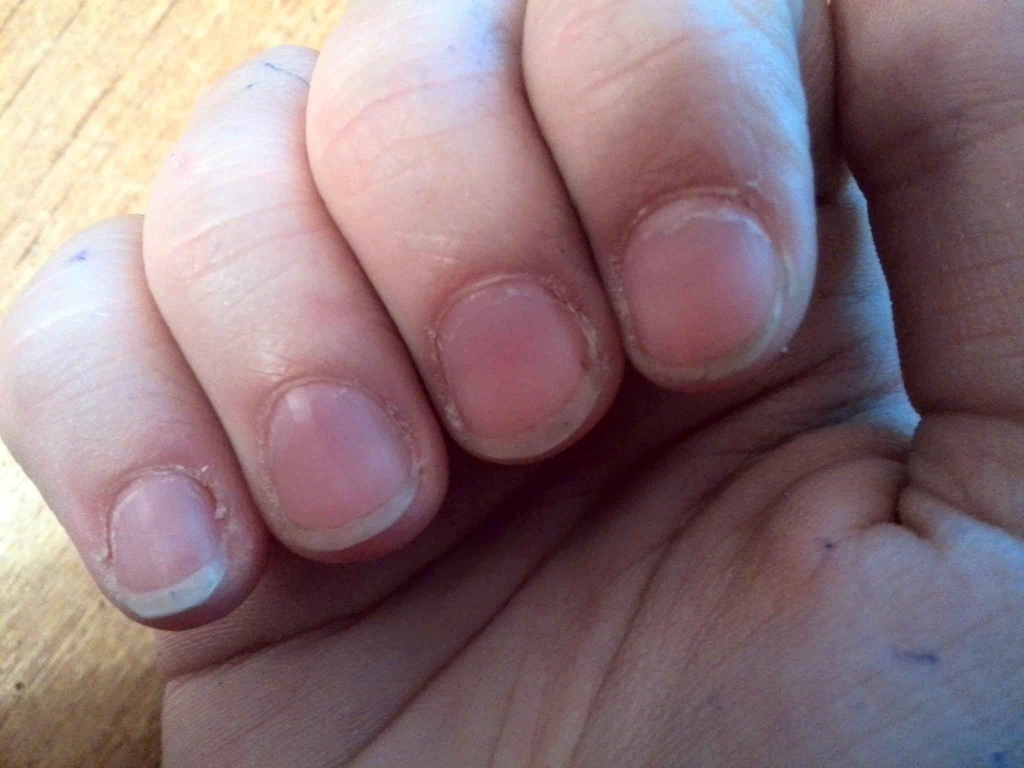 Как достать занозу из пальца, даже если она глубоко, и её не 72