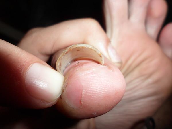 Отбитый ноготь на ноге не отваливается