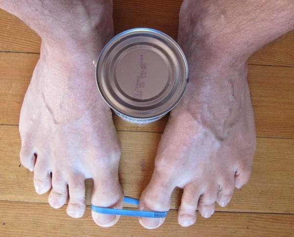 Как в домашних условиях удалить косточку на ноге