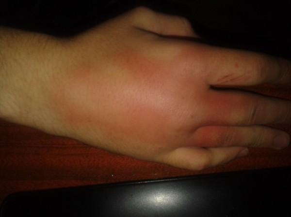 Как сделать чтобы распухла рука 162