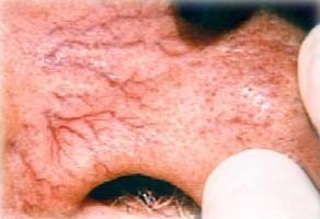 Тромбоз вен портальной системы синдром портальной гипертензии варикоз вен пищевода 3 степени