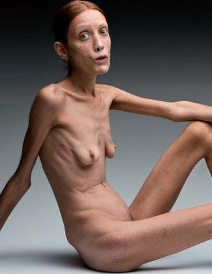 Фото голых женщин очень худых