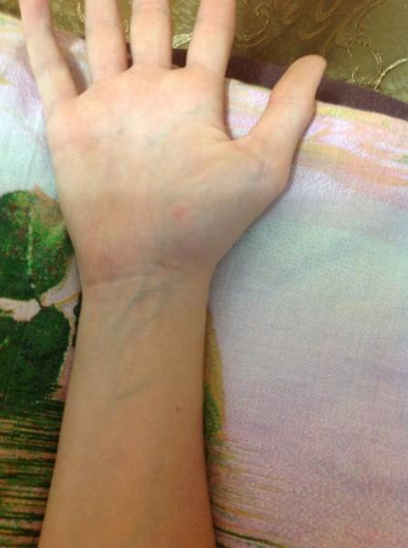 Почему вены сильно видно на руках