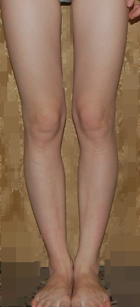 porno-krivie-nogi
