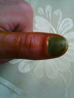 Что делать с отбитым ногтем на руке
