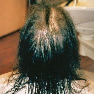 Какую сделать прическу если редкие волосы