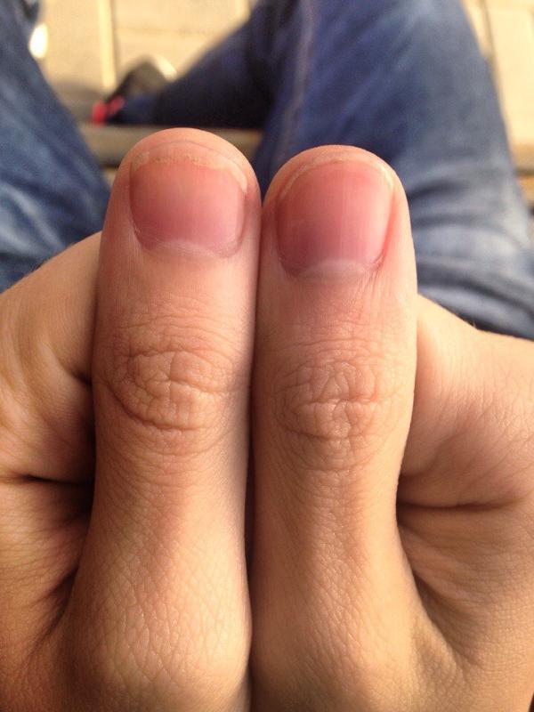 Ребенок грызет ногти, причины этого, что делать : Воспитание