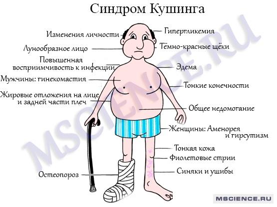 Симптомы болезни надпочечников у мужчин