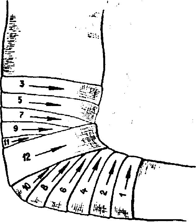 наложение повязки на область коленного сустава
