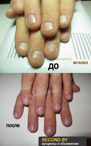 Приводим в порядок обгрызанные ногти