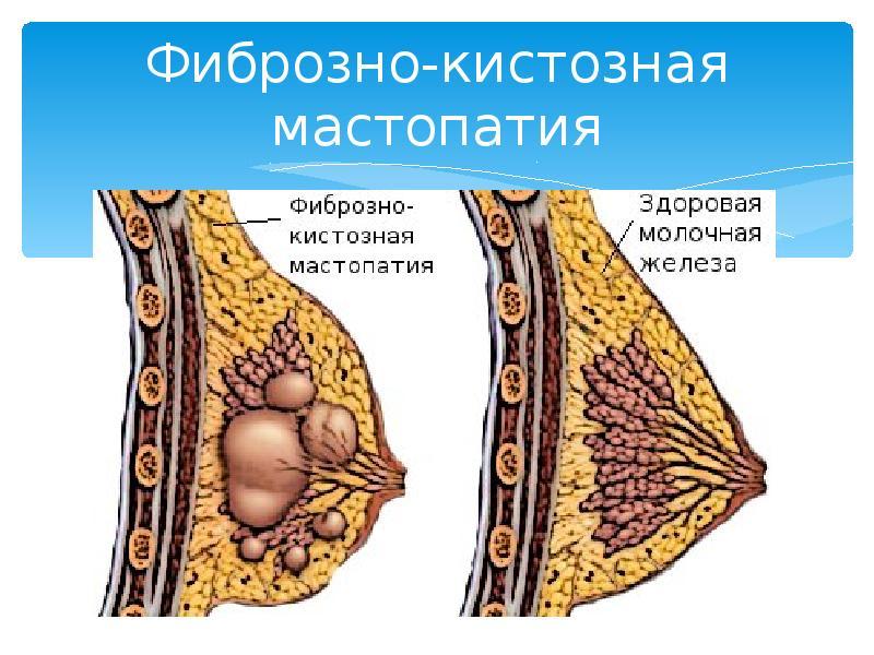 Ответы@Mail.Ru: В вашем городе есть гипердиагностика по фиброзно-кистозной мастопатии?