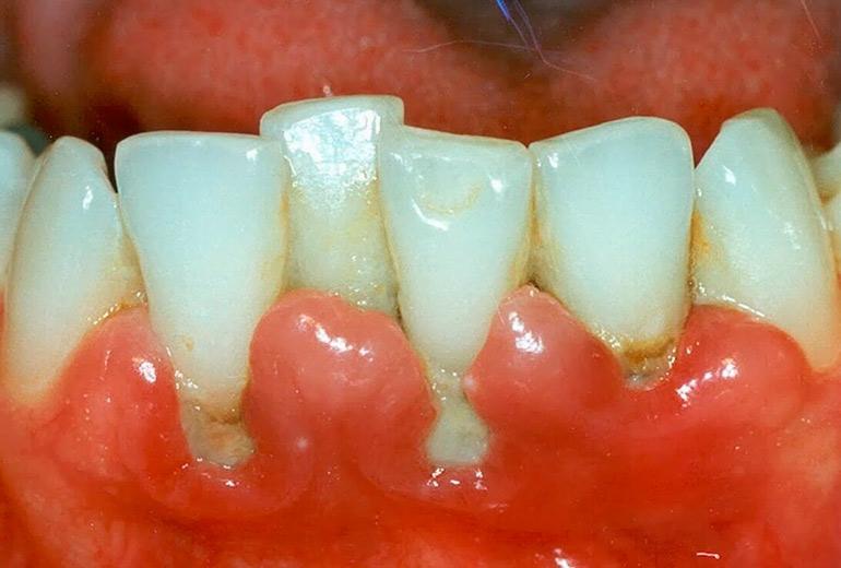 Зуб мудрости болит десна чем полоскать в домашних условиях