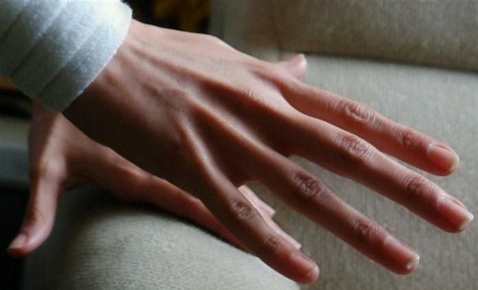 Что делать если у пианиста болит рука