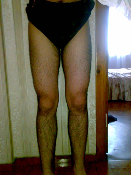 волосики на ногах женских присланное фото