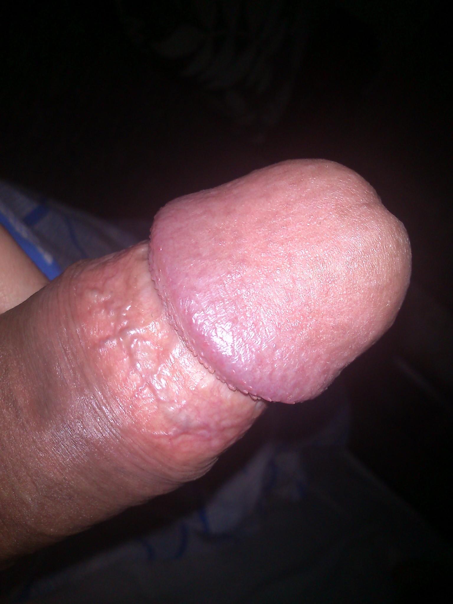 Набухший пенис картинки #13