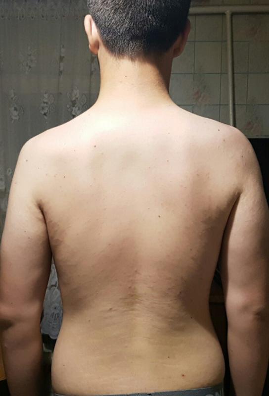 ямочки на плечах значение фото столе смотрятся