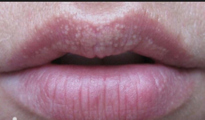 Половых губ фотографии