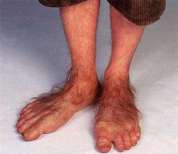почему одна нога толще а другая худее?