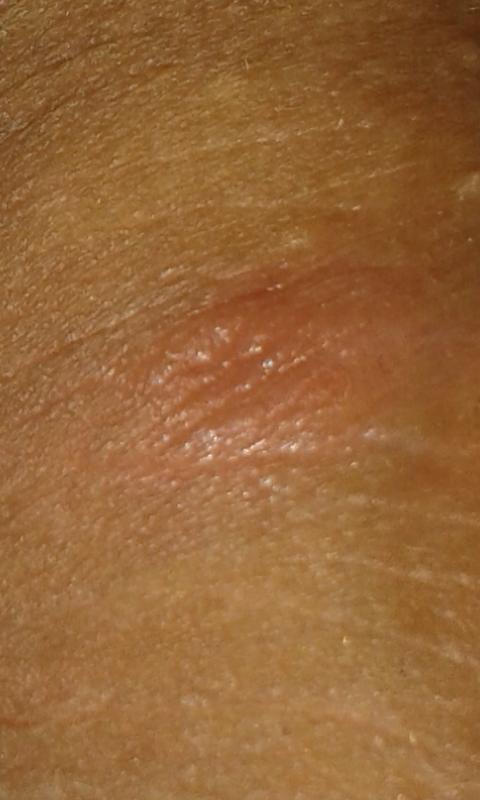 Может быть из за простатита на головке члена красное пятно лечение аденомы простаты и простатита народными средствами самые эффективные