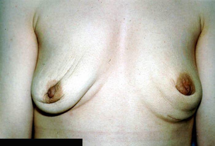 Фото уродливих грудей
