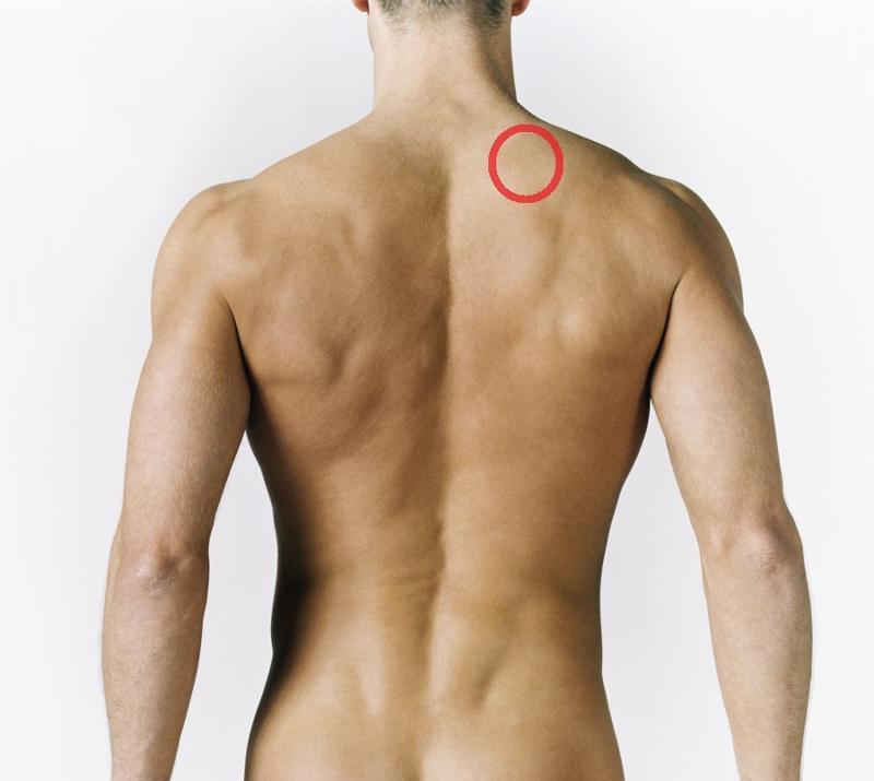 Миозит плеча симптомы