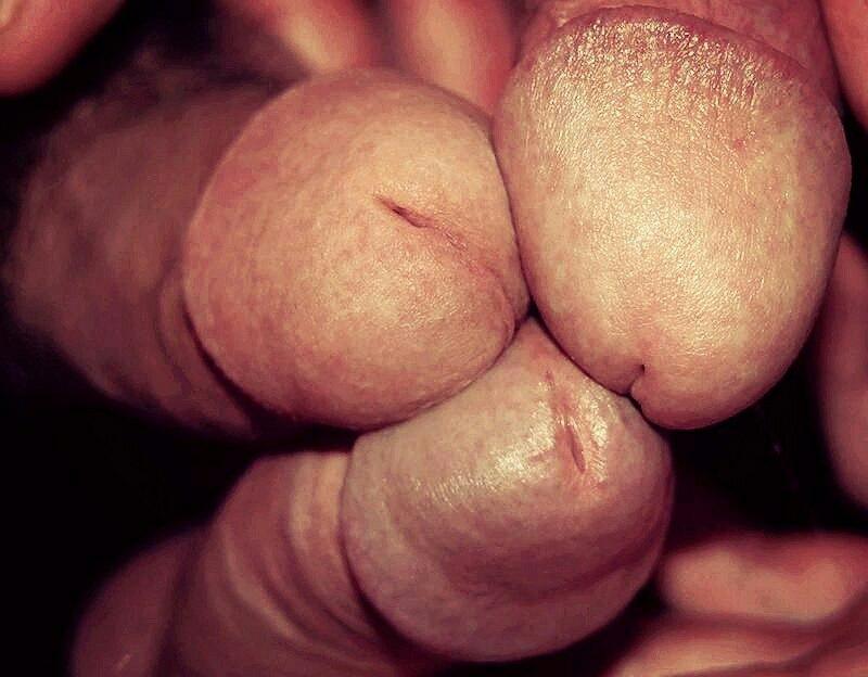 zalupa-krupnim-planom-porno-foto-kakie-soski-bivayut-u-bab