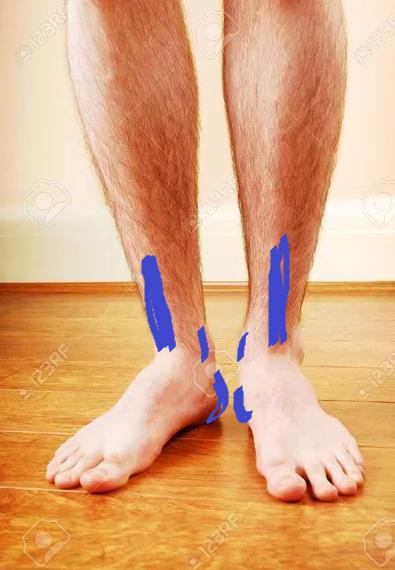Надавала ногами принимаю