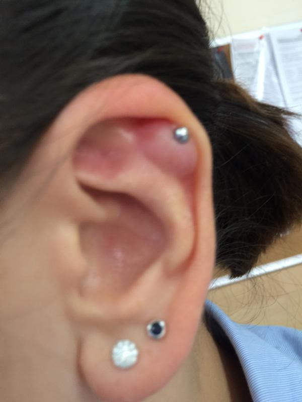 Что делать если болит ухо после прокола
