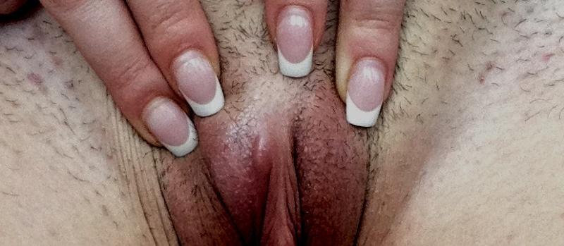 телочка своей прыщ на гениталии фото вполне резонная
