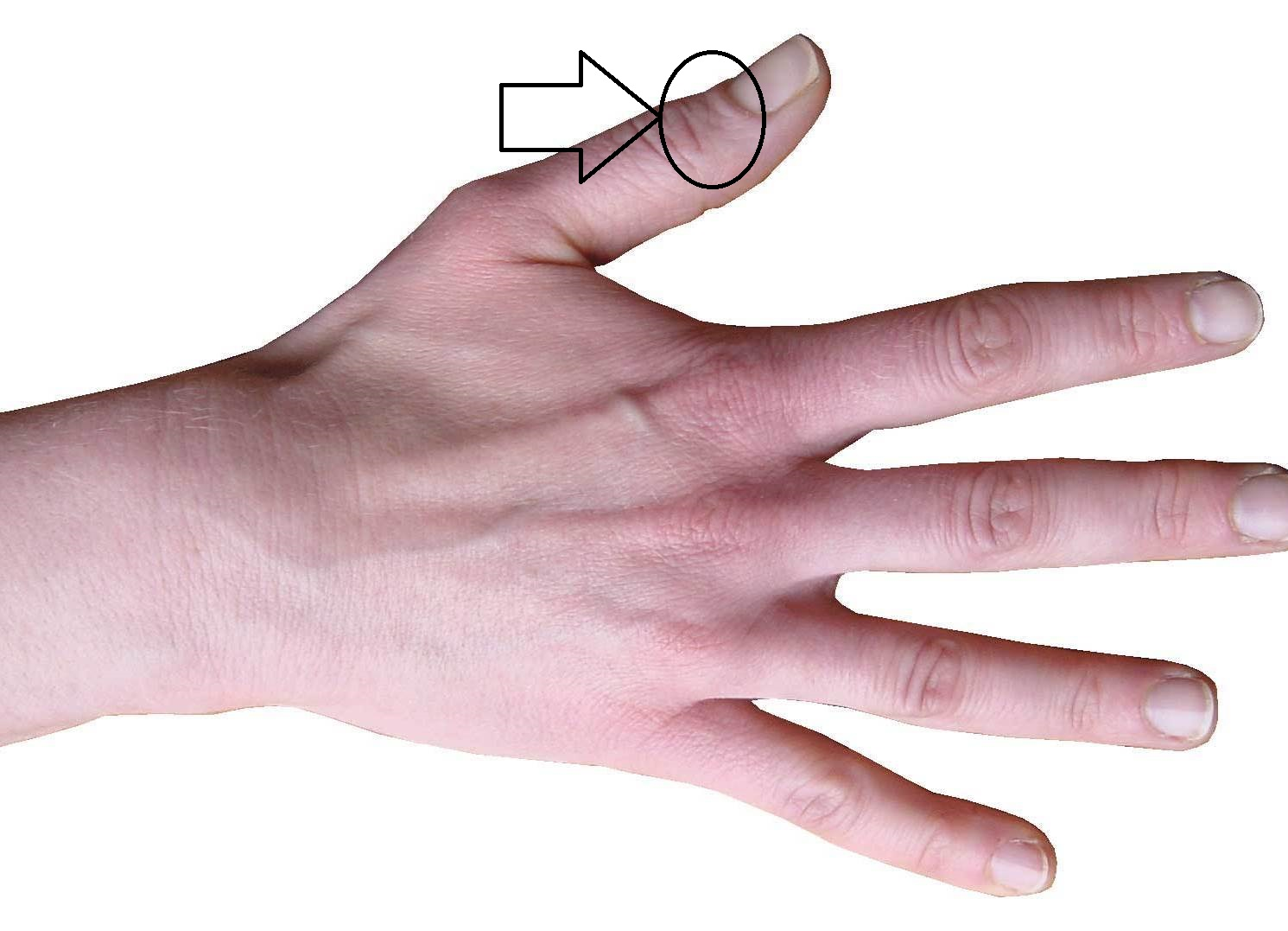 это смотреть картинки кисти рук культивирует