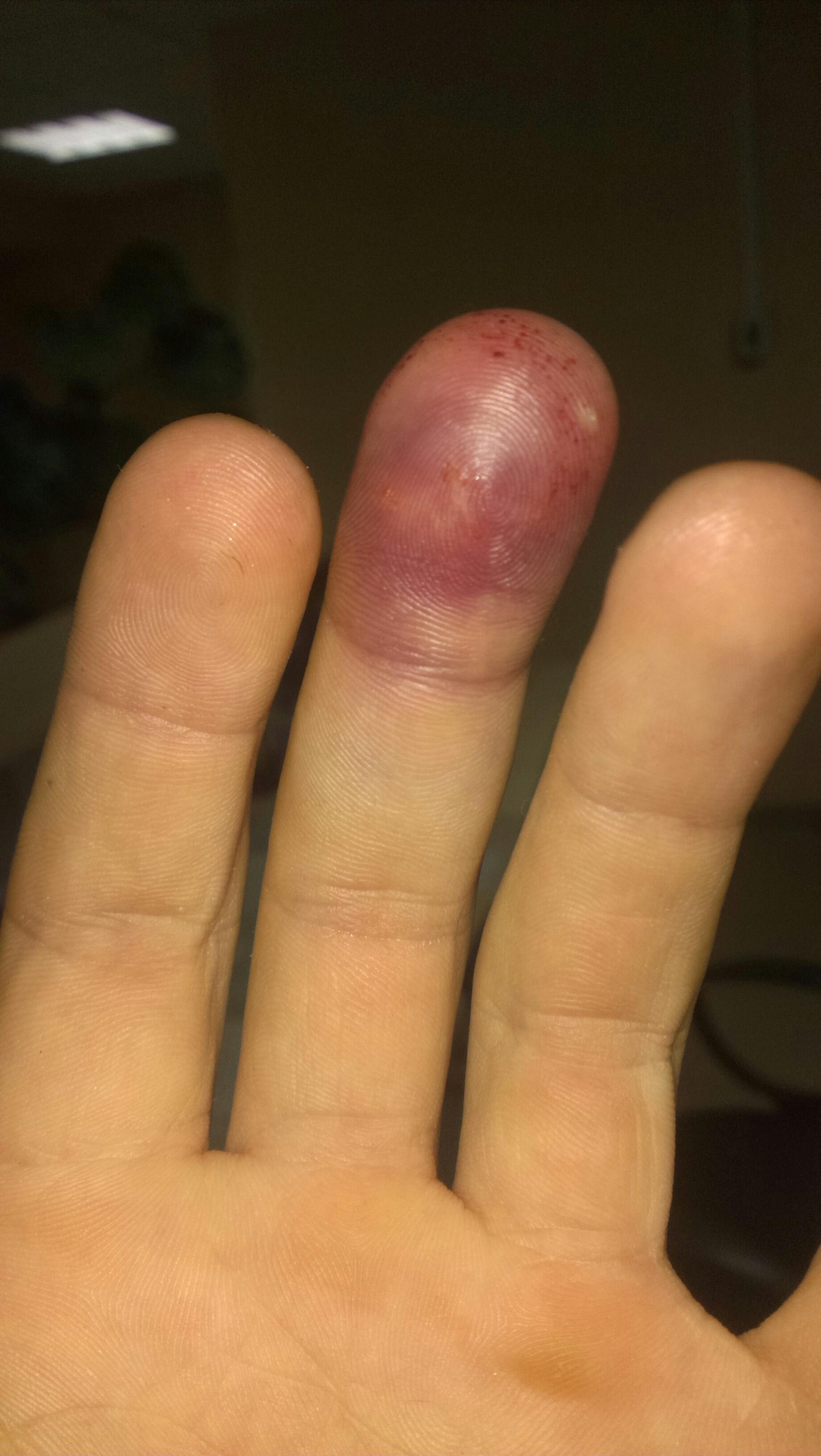 картинка опухший палец поехал отдыхать альпы