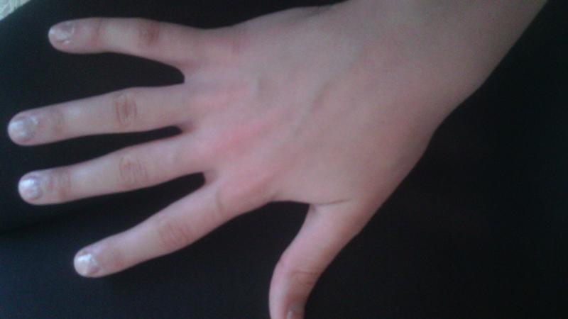 Почему Похудели Пальцы Рук.