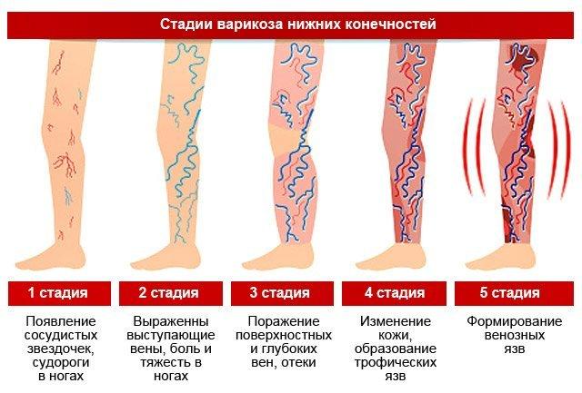 Варикоз на ногах причины симптомы и лечение