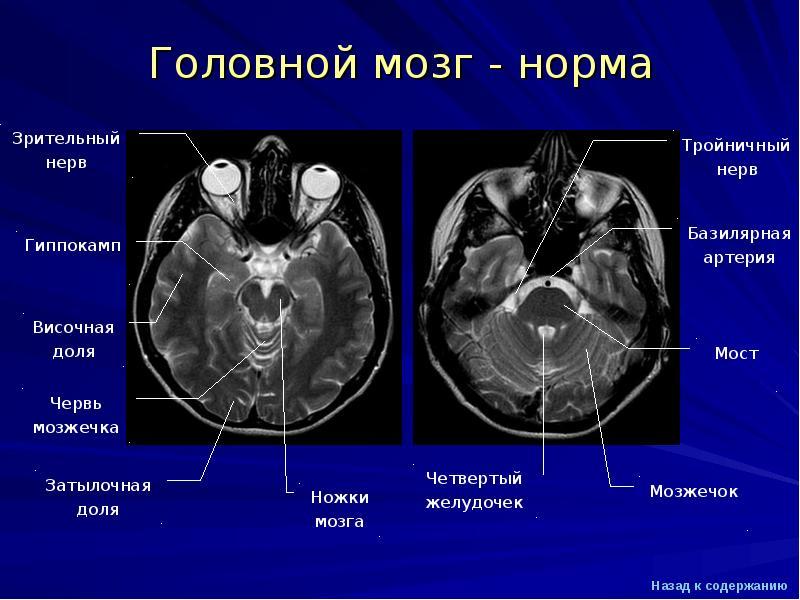 Мрт анатомия головного мозга человека в картинках