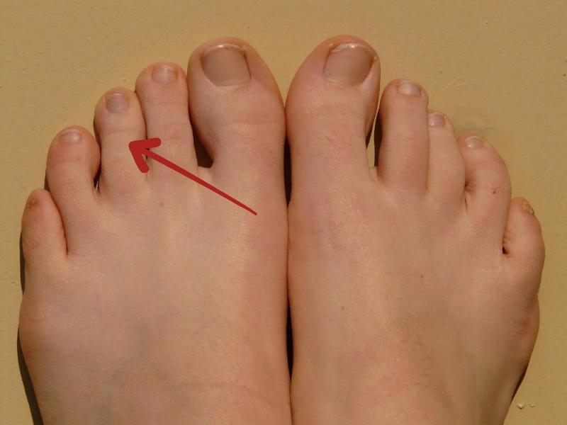 Похудели пальцы ног