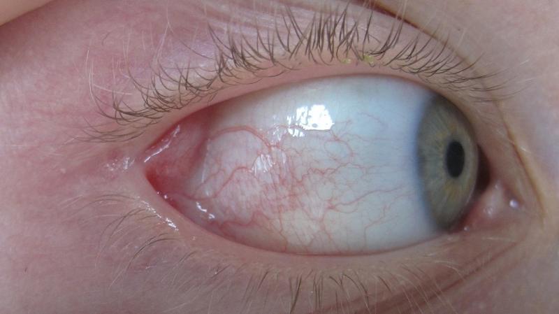 От чего болят глаза внутри