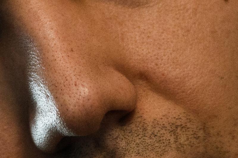 картинки с порами на лице бонни